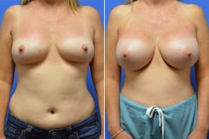 Breast Augmentation Case # 227