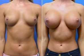 Breast Augmentation Case # 218