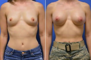 Breast Augmentation Case # 234