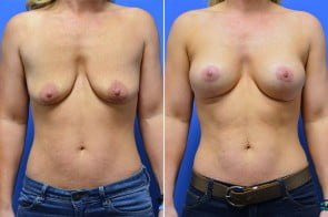 Breast Augmentation Case # 229
