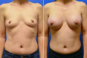 Breast Augmentation Case # 230
