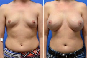 Breast Augmentation Case # 231