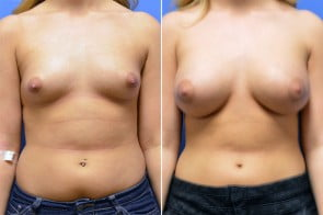 Breast Augmentation Case # 232