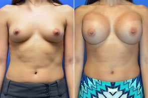 Breast Augmentation Case # 219