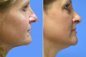 Laser Resurfacing Case # 178