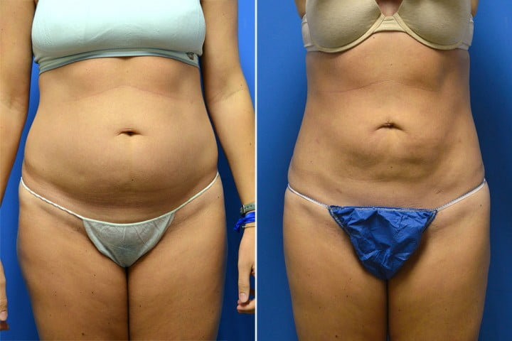 Liposuction Case # 151