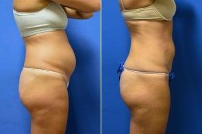 liposuction-01c-branman