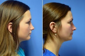 Rhinoplasty Case # 154