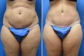 Tummy Tuck Case # 213