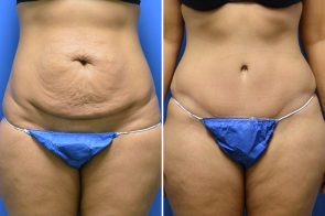 Tummy Tuck Case # 214