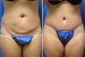 Tummy Tuck Case # 215
