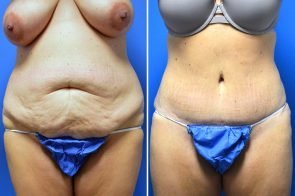 Tummy Tuck Case # 216