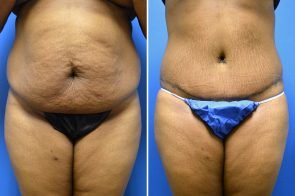 Tummy Tuck Case # 217