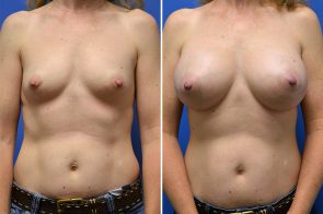 Breast Augmentation Case # 235