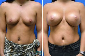Breast Augmentation Case # 236