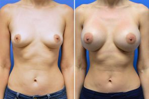 Breast Augmentation Case # 237