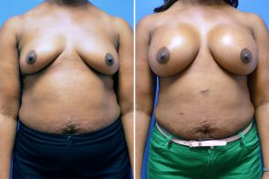 Breast Augmentation Case # 238