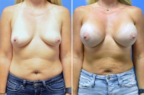 Breast Augmentation Case # 239