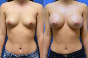 Breast Augmentation Case # 241