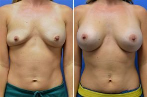 Breast Augmentation Case # 242