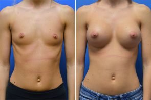 Breast Augmentation Case # 243