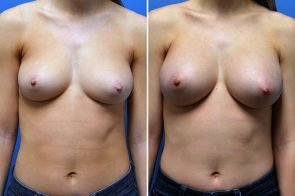 Breast Augmentation Case # 245