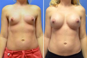 Breast Augmentation Case # 246