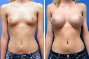 Breast Augmentation Case # 247