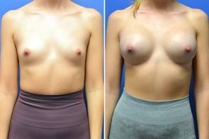 Breast Augmentation Case # 248