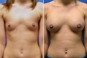 Breast Augmentation Case # 249