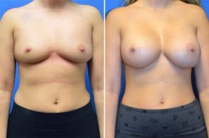 Breast Augmentation Case # 250