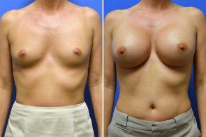 Breast Augmentation Case # 251