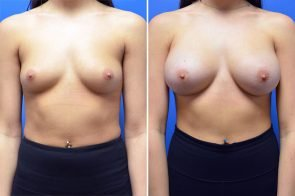 Breast Augmentation Case # 252