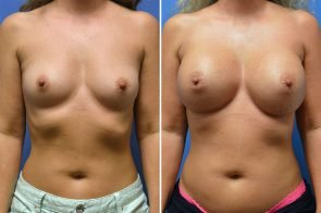 Breast Augmentation Case # 253