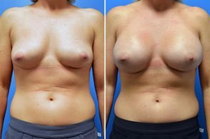 Breast Augmentation Case # 254