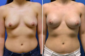 Breast Augmentation Case # 255
