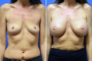 Breast Augmentation Case # 257