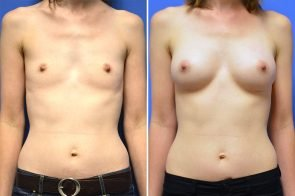 Breast Augmentation Case # 259