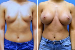 Breast Augmentation Case # 260