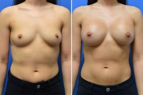 Breast Augmentation Case # 261
