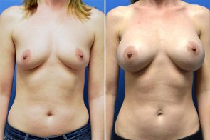 Breast Augmentation Case # 262