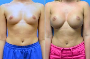 Breast Augmentation Case # 263