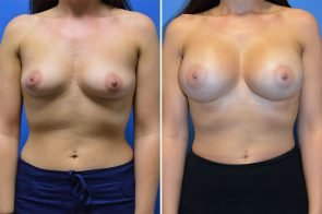 Breast Augmentation Case # 264