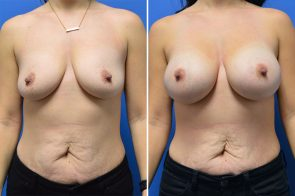 Breast Augmentation Case # 265