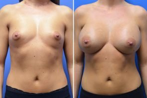 Breast Augmentation Case # 266