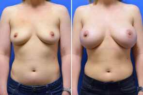 Breast Augmentation Case # 267