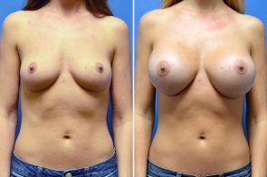 Breast Augmentation Case # 268