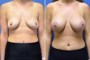 Breast Augmentation Case # 269