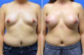 Breast Augmentation Case # 270