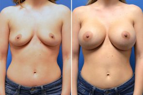 Breast Augmentation Case # 271